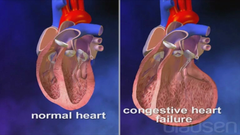 "personal impact living with congestive heart failure The term ""congestive heart failure"" sounds frightening, as if the heart has stopped beating this is far from the case and while heart failure is serious in all of its forms, living a full life with heart failure means understanding what you are up against, controlling what's in your power to control, and coping as best you can with what."